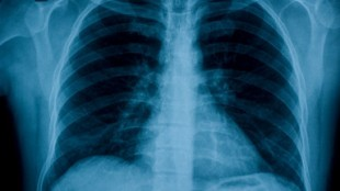 chest_x-ray