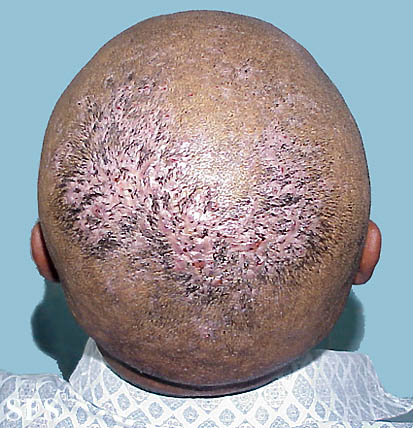 Itchy Scalp Causes Pictures Treatment Phaa Com