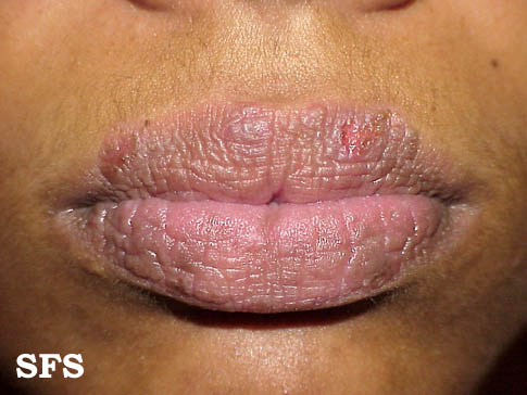 Mild Perioral Dermatitis Lips Itchy Face (With or Wi...