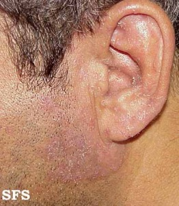Fungus on facial area