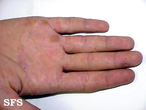 dry cracked skin on fingers fungus