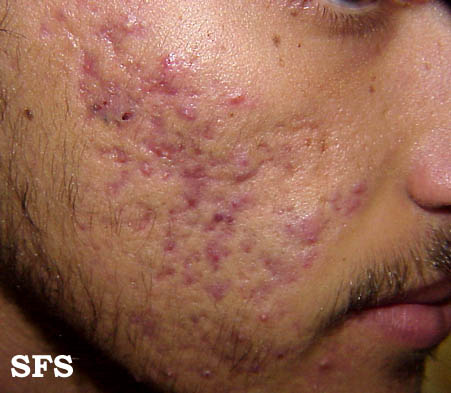 Nerve damage facial rash