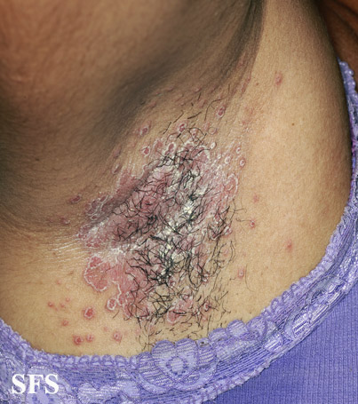 Armpit Fungus Causes, Pictures, Treatment, Prevention – Phaa com