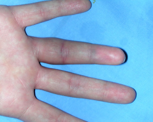 Red swollen thumb joint